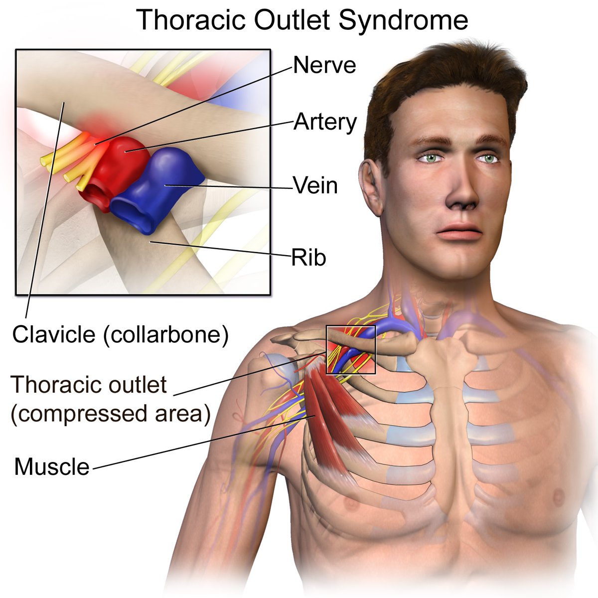 Thoracic Outlet Syndrome Burning Pain Between Your Spine
