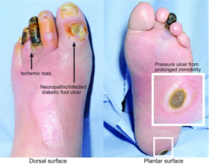 Three classes of chronic wound on a diabetic patient's foot