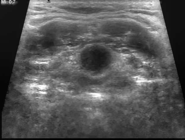 thyroglossal duct cyst ultrasound image