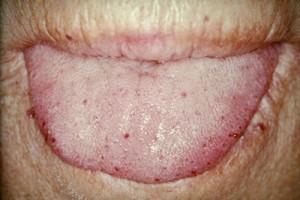 Tongue telangiectases in hereditary hemorrhagic telangiectasia