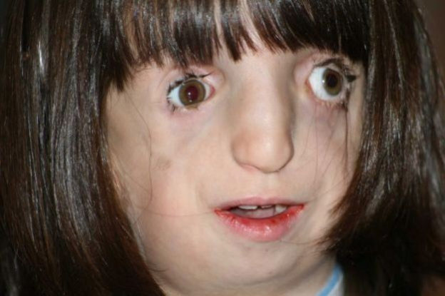 Treacher-Collins-syndrome