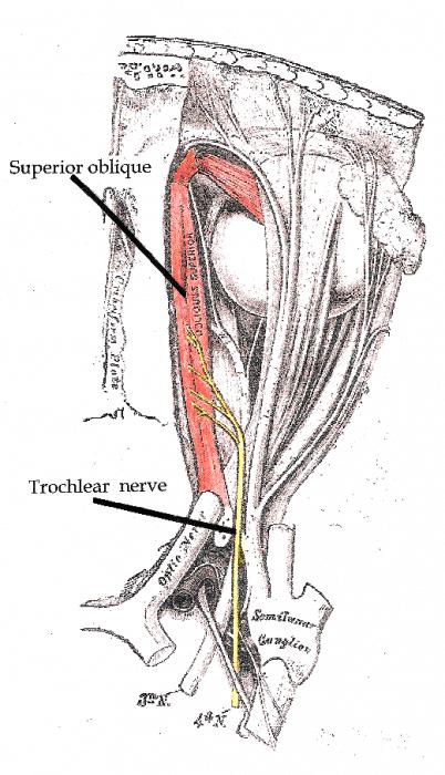 Trochlear nerve