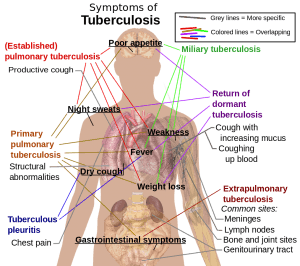 Tuberculosis symptoms