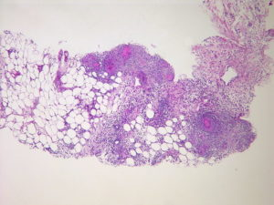 Gastrointestinal Pathology – Online Medical Course | Start