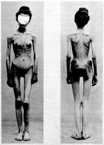 Two images of an anorexic female patient in a French medical journal Nouvelle Iconographie de la Salpêtrière vol 13, published in 1900.