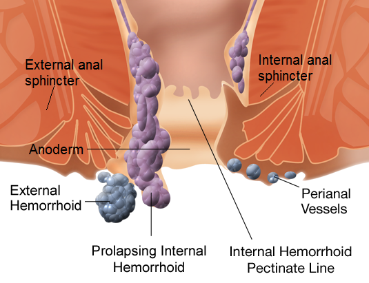 Types of hemorrhoids