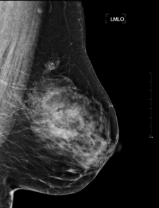 Typical mammogram in MLO view from clinical dataset