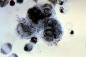 Tzanck test herpes