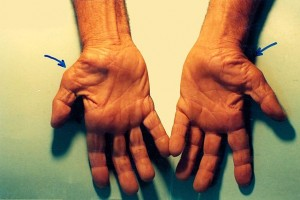 """Untreated Carpal Tunnel Syndrome"" by Dr. Harry Gouvas. License: Public Domain."