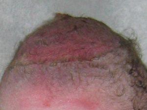 Vacuum Extraction bruised scalp