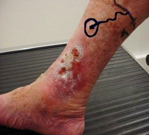 Venous ulcer before surgery