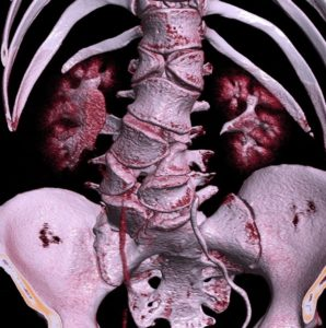 CT_of_butterfly_vertebrae - alagille syndrome