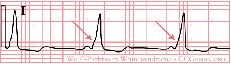 Wolff–Parkinson–White syndrome
