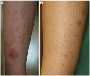 allergic-Purpura