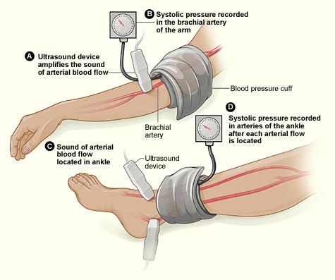 ankle-brachial index