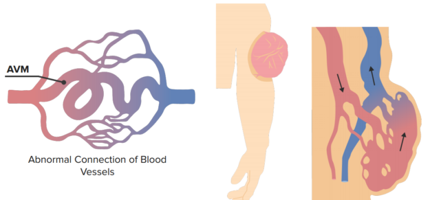 arteriovenours