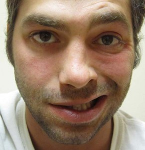 image of man with bells palsy