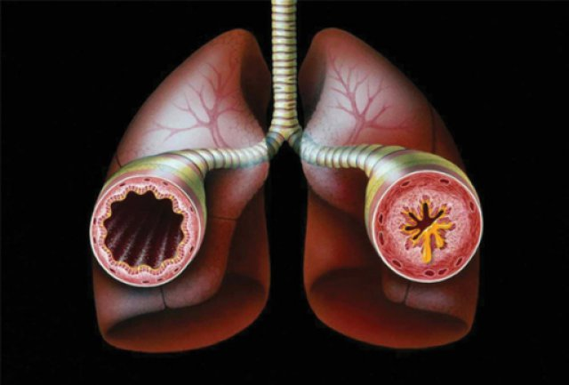 bronchial wall in asthma