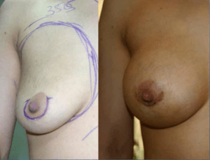 breast augmentation – before and after the operation
