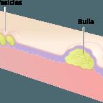 Bulla and Vesicle
