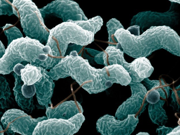 Microscopic Image of campylobacter jejuni