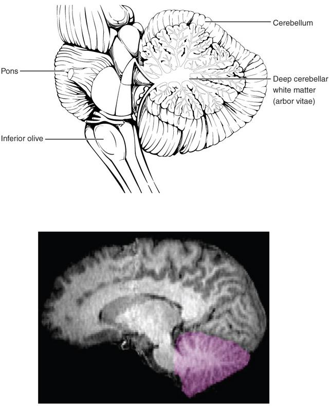 cerebellums