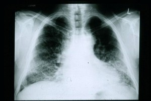 chest radiograph of a patient with IPF