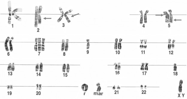 Human Genetics Inheritance In The Human Medical Library