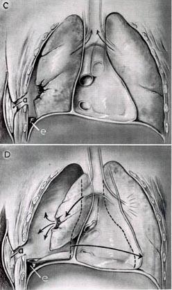 development of a tension pneumothorax