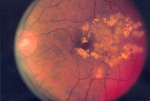 diabetic_retinopathy