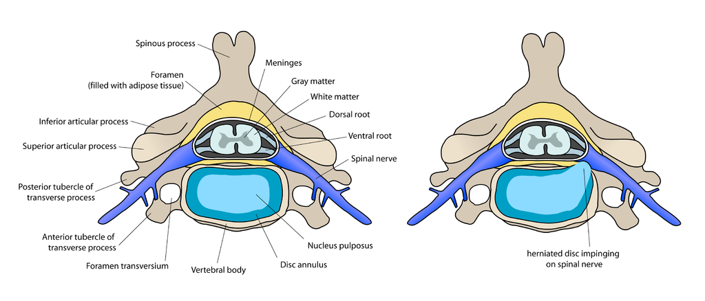diagram of preconditions for Anterior cervical discectomy and fusion