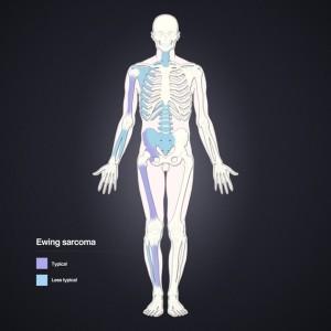 Distribution of Ewing sarcoma
