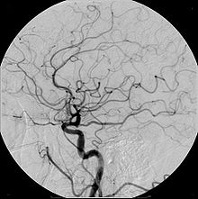 Cerebral Angiogram obtained using an iodine based contrast medium