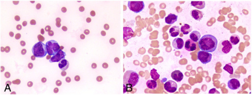 Fanconi anemia blood smear
