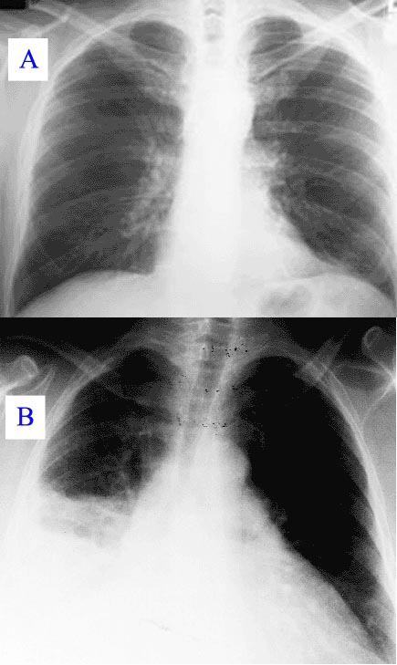 x ray of fever Pneumonie