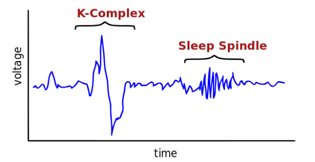 fictional-EEG-Stage2sleep