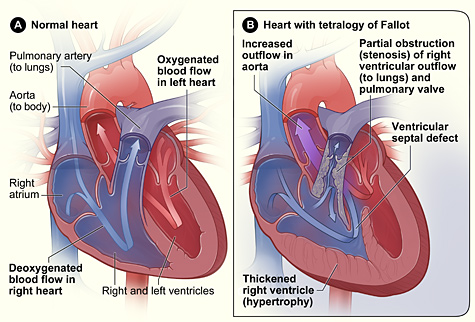 heart with tetralogy of fallot