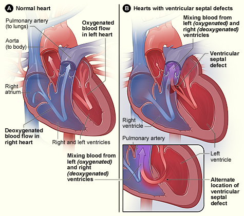 heart with ventricular septal defects