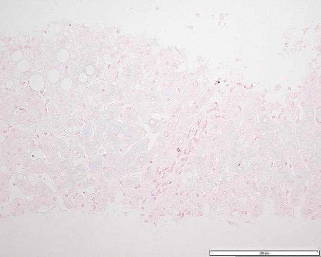 heterozygous genetic Hemochromatosis