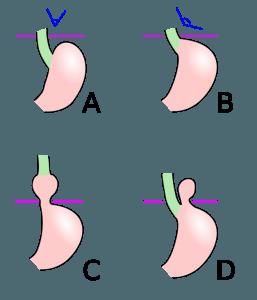 Schematic diagram of different types of hiatus hernia