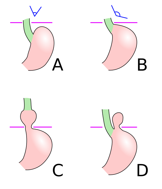 Axial And Paraesophageal Hiatal Hernia