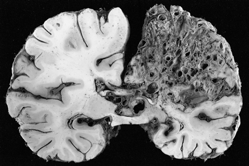 large arteriovenous malformation in the left hemisphere