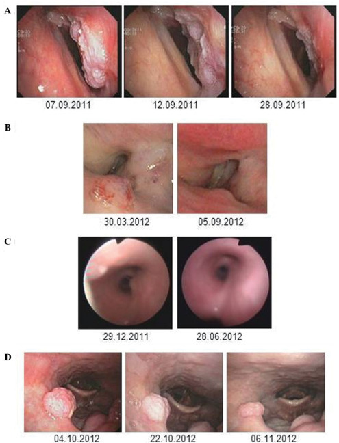 local changes in tje larynx