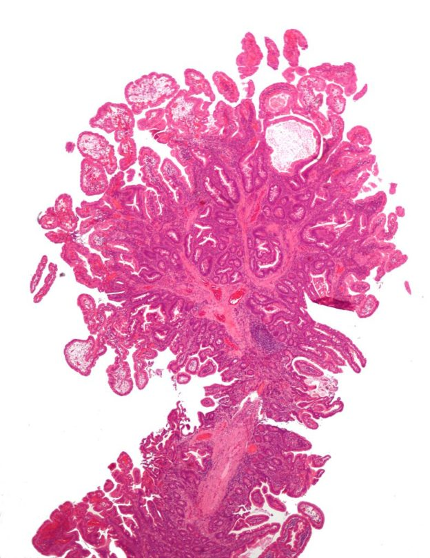micrograph of a Peutz-Jeghers type intestinal polyp