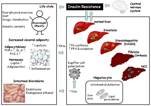 molecular mechanisms involved in the development and progression of non-alcoholic fatty liver disease