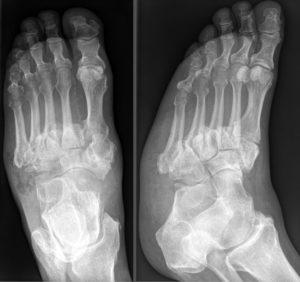 neuropathic arthropathy