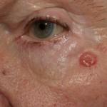Nodular Basal cell carcinoma in 75-year-old man