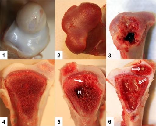 osteomyelitis bacterial