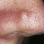 Papule on the Nose