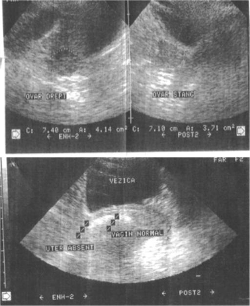 pelvic-ultrasonoraphy-image_primary-amenorrhea